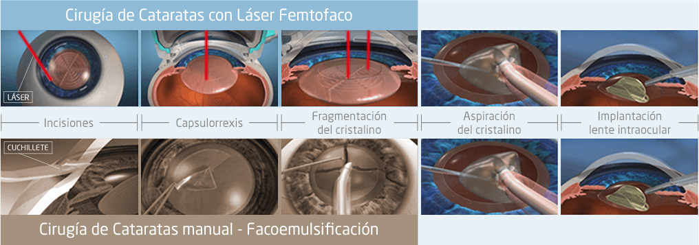 comparativa cirugia cataratas laser y manual