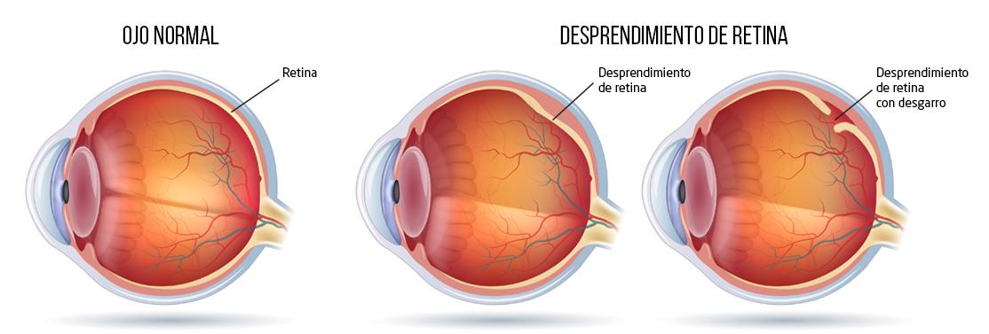 desprendimiento de retina sintomas y signos de diabetes