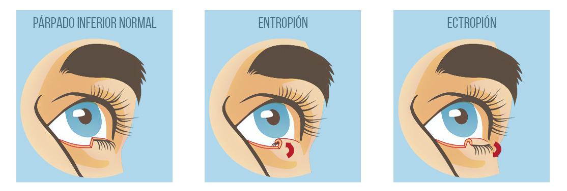 Trastornos de los Párpados - Entropión - Ectropión