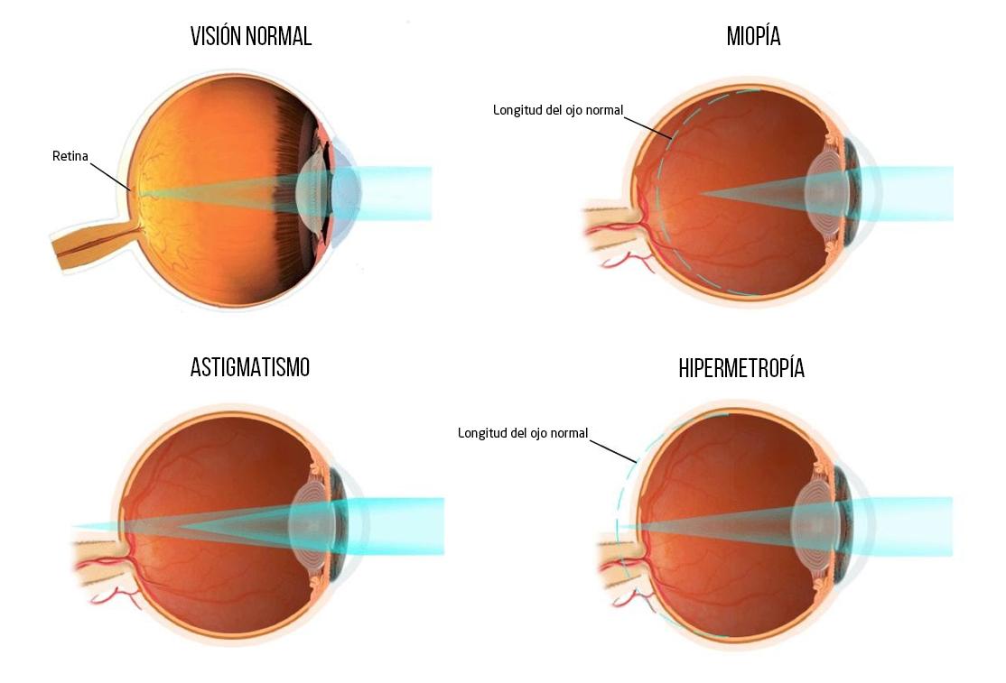 Defectos Refractivos - MIopía, Astigmatismo, Hipermetropía