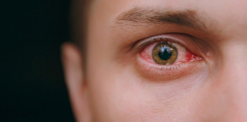 infección contagiosa en los ojos