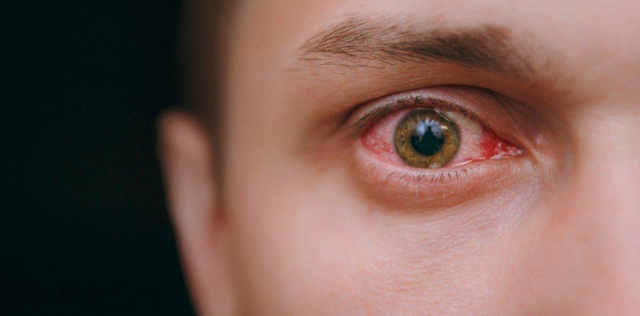 orzuelo en ojo es contagioso