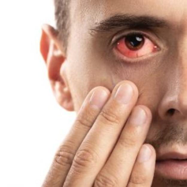 estrés visual síntomas