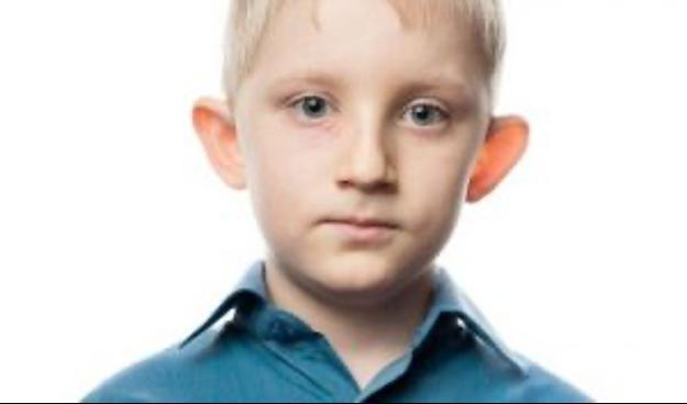 herpes ocular niños