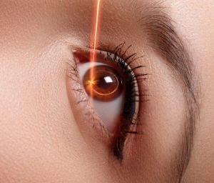 cambiar color de ojos operación