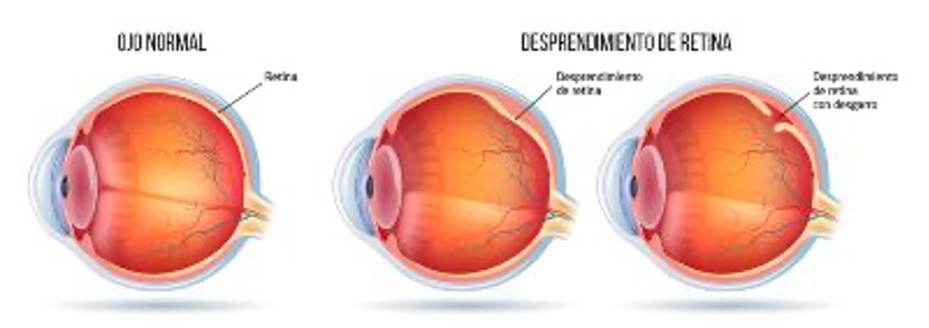 desgarro de retina