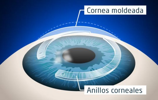 VST_anillos_corneales